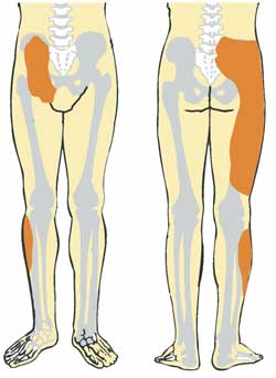 Sacroiliac-Pain-Areas1